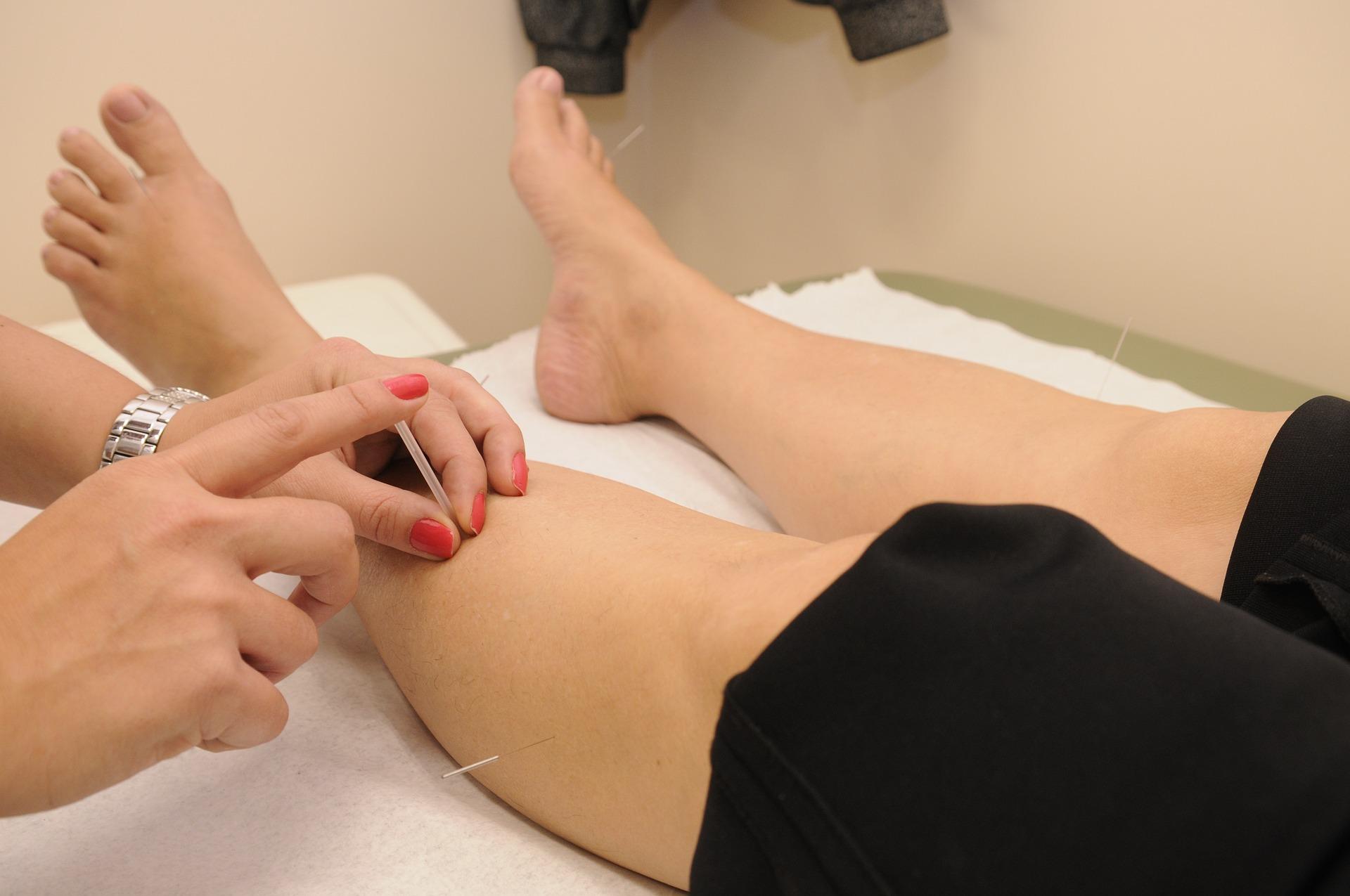 Dit is en afbeelding van dry needling bij de fysiotherapeut in Hoorn. Frits van der Werff Dry Needling
